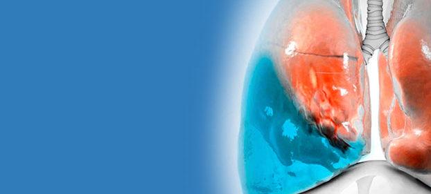 Manejo do derrame pleural malígno – um guideline oficial ATS/STS/STR para prática clínica – Feller-Kopman, David J., et al.